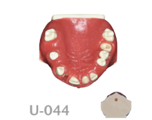 BoneModels U044 220x174 - U-044: Partially edentulous maxilla with three sockets, one of them with a dehiscence and thicker soft tissue.