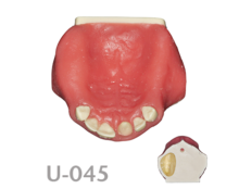 BoneModels U045 220x174 - U-045: Maxillary model with atrophic ridge in right side, ideal for horizontal bone augmentation. Ticker soft tissue in palatal area.