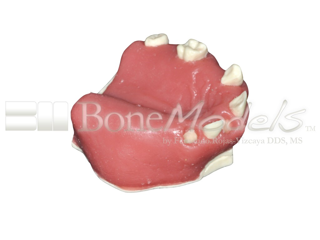 Partially edentulous maxilla ideal for eight techniques in a single model.
