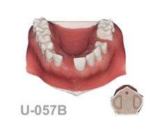 BoneModels U057B 220x174 - U-057B: Maxilla for X rays with different densities, soft tissue and sinuses.