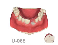 BoneModels U068 220x174 - U-068A: Maxilla with decapitated teeth, molar socket and areas with cortical and cancellous bone.