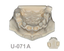 BoneModels U071A 220x174 - U-071A: Maxillary model for sinus technique and implant placement.