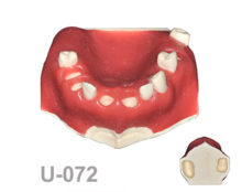 "BoneModels U072 1 220x174 - U-072: ""Any-on-one"" maxillary model for different GBR, soft tissue graft, sinus techniques and implant placement."