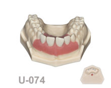 BoneModels U074 1 220x174 - U-074: Maxillary model with some ivorine teeth in the anterior area and soft tissue in this area.