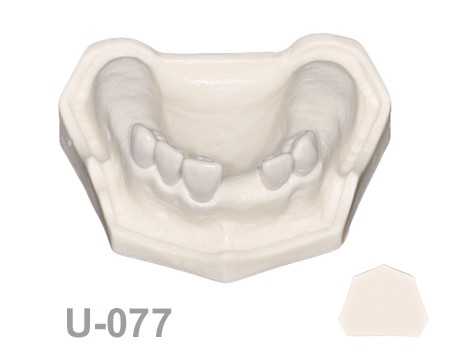 BoneModels U077 1 - U-077: Maxillary model with some Ivorine teeth in the anterior area and healed ridges. Without soft tissue.