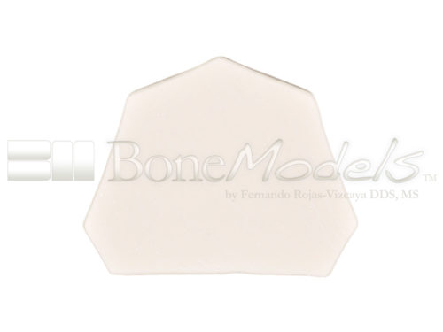 BoneModels U077 08 1 500x375 - U-077: Maxillary model with some Ivorine teeth in the anterior area and healed ridges. Without soft tissue.
