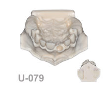 BoneModels U079 1 220x174 - U-079: Maxillary model with fixed teeth, edentulous posterior areas, bone recession in both canines, one socket and different bone densities.