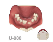 BoneModels U080 1 220x174 - U-080: Maxillary model with soft tissue, with fix teeth and edentulous areas, gingival recession in both canines, one socket and different bone densities.