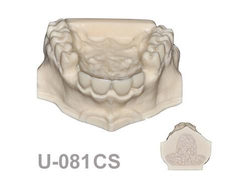 U-081CS: Modelo maxilar con algunos dientes incluidos con hueso ...