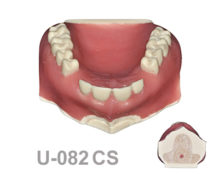 BoneModels U082CS 1 220x174 - U-082CS: Maxillary model with some impacted teeth with cortical and cancellous bone and soft tissue.