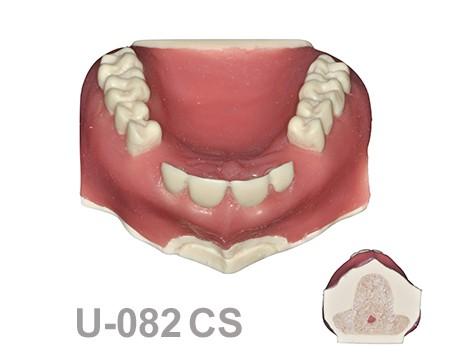 U-082CS: Modelo maxilar con algunos dientes incluidos con hueso ...