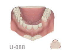 BoneModels U088 1 220x174 - U-088: Maxillary model with some impacted teeth with different bone densities and periapical cyst in the canine.