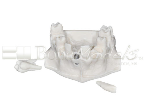 BoneModels U095 01 500x375 - U-095: Maxillary model with five sockets three of them with implants. The bone has different bone deffects.