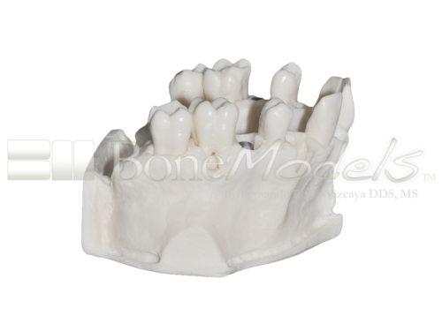 BoneModels U095 03 500x375 - U-095: Maxillary model with five sockets three of them with implants. The bone has different bone deffects.