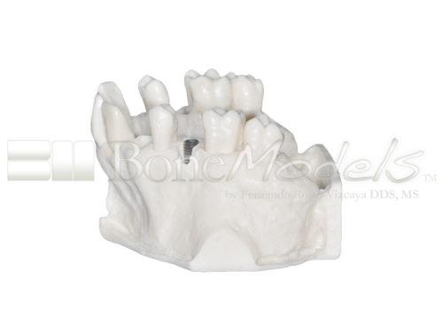 BoneModels U095 04 500x375 - U-095: Maxillary model with five sockets three of them with implants. The bone has different bone deffects.