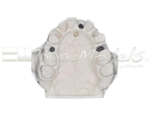BoneModels U095 05 500x375 - U-095: Maxillary model with five sockets three of them with implants. The bone has different bone deffects.