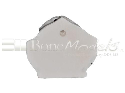 BoneModels U095 06 500x375 - U-095: Maxillary model with five sockets three of them with implants. The bone has different bone deffects.