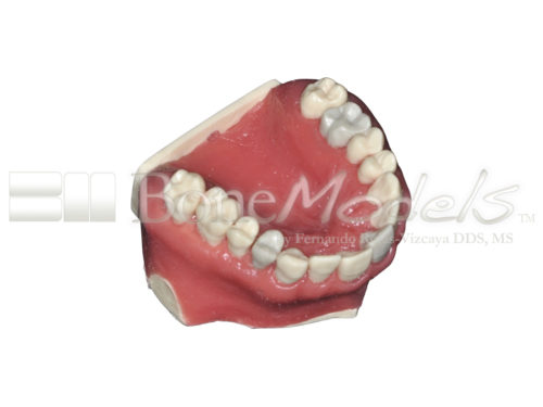 BoneModels UE034A 02 500x375 - UE-034A: Maxilla for endodontics with root canal in 3 teeth, periapical lesions, cyst and ligament.