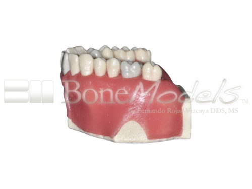 BoneModels UE034A 04 500x375 - UE-034A: Maxilla for endodontics with root canal in 3 teeth, periapical lesions, cyst and ligament.
