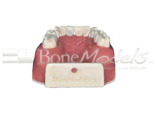 BoneModels UE034A 06 500x375 - UE-034A: Maxilla for endodontics with root canal in 3 teeth, periapical lesions, cyst and ligament.