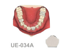 BoneModels UE 034A 220x174 - UE-034A: Maxilla for endodontics with root canal in 3 teeth, periapical lesions, cyst and ligament.