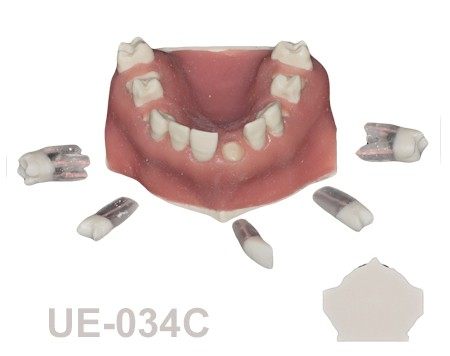 BoneModels UE 034C - UE-034C: Maxilla with fixed and endo teeth. Cortical and cancellous bone. Model with soft tissue. Contact points opened on all the teeth to allow for suturing.