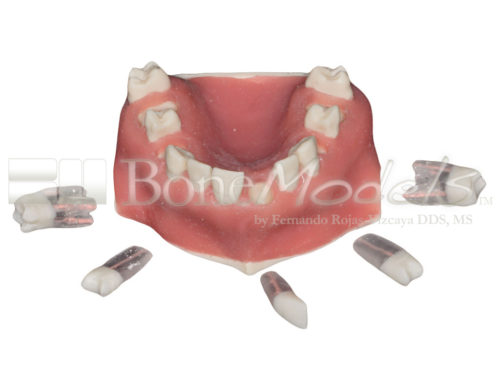 BoneModels UE 034C 01 500x375 - UE-034C: Maxilla with fixed and endo teeth. Cortical and cancellous bone. Model with soft tissue. Contact points opened on all the teeth to allow for suturing.