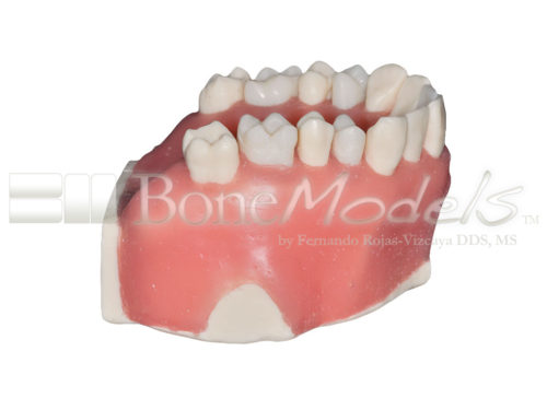 BoneModels UE 034C 03 500x375 - UE-034C: Maxilla with fixed and endo teeth. Cortical and cancellous bone. Model with soft tissue. Contact points opened on all the teeth to allow for suturing.