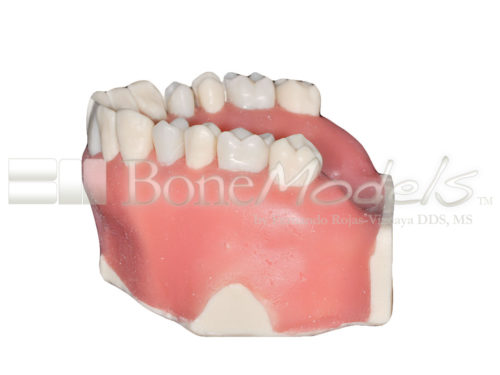 BoneModels UE 034C 04 500x375 - UE-034C: Maxilla with fixed and endo teeth. Cortical and cancellous bone. Model with soft tissue. Contact points opened on all the teeth to allow for suturing.