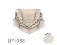 BoneModels UP058 1 220x174 - UP-058: Calculus teeth maxilla without soft tissue. Type 4.