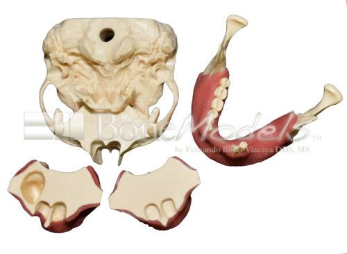 KIT C 5 500x366 - KitC: Skull, 2 Maxillae and 1 mandible - kit composed by: S-004B, U-007B, U-018B and L-031.