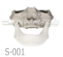 S 001 MANDIBULA VELADA PORTADA 1 220x201 - S-001: Half skull & articulated mandible with moderate resorption.