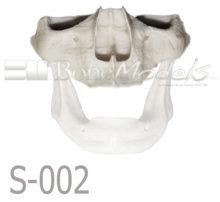 S 002 MANDIBULA VELADA PORTADA 220x202 - S-002: Half skull & articulated mandible with big resorption.