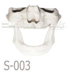 S 003 MANDIBULA VELADA PORTADA 220x236 - S-003: Half skull & articulated mandible with severe resorption.
