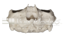S 003 SIN MANDIBULA 220x133 - S-003: Half skull & articulated mandible with severely resorption.