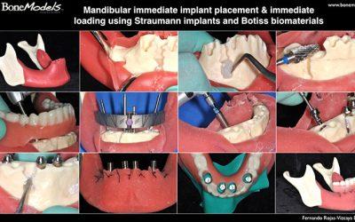 mandibular bonemodel 400x250 - The new mandibular BoneModel for immediate implant placement and immediate loading protocol