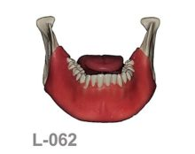 portada L062 220x174 - L-068A: Mandible with fixed teeth and soft tissue with tongue.