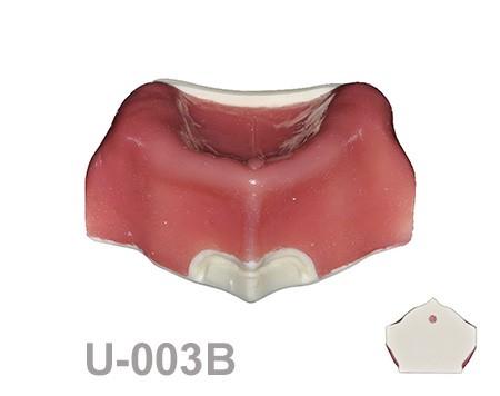 portada U003B - U-003B: Severely atrophic edentulous maxilla with soft tissue.