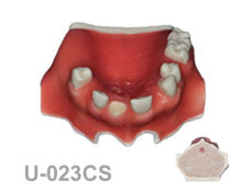 portada U023CS 220x174 - U-023CS: Partially edentulous maxilla with 1 socket, healed ridges with cortical and cancellous bone and soft tissue.