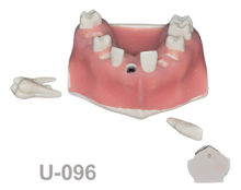 portada u096 220x174 - U-096: Maxillary model with five sockets three of them with implants. The bone has different bone deffects and soft tissue.