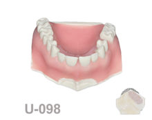 portada u098 220x174 - U-098: Maxillary model with removable central and healed ridge in the right side with an area with cortical and cancellous bone and soft tissue.