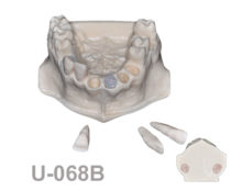 portada u 050A 220x174 - U-068B: Maxilla with decapitated teeth, molar socket, some removable teeth and areas with cortical and cancellous bone.