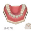 portada u 076 100x100 - U-077: Maxillary model with some Ivorine teeth in the anterior area and healed ridges. Without soft tissue.