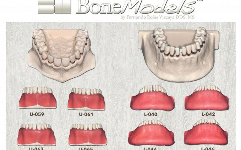 promo bonemodels calculos 767x479 - Calculous BoneModels