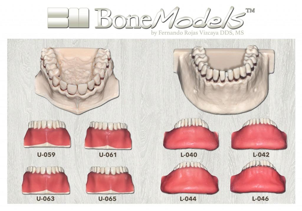 promo bonemodels calculos - Calculous BoneModels
