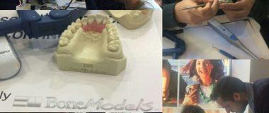 """wax modelling 380x160 - Cursos como """"Modelado, adhesión y estratificación avanzada con composites"""" con BoneModels"""